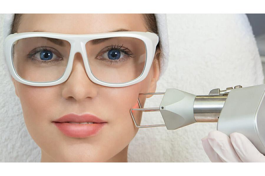 Laser Fractional CO2 mang lại hiệu quả vĩnh viễn khi điều trị sẹo