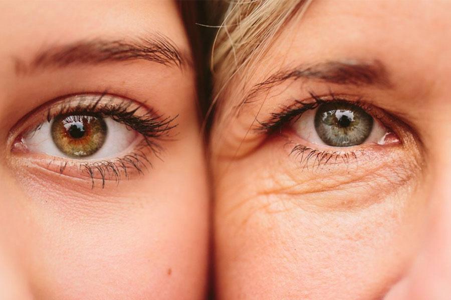 Nếp Nhăn Quanh Mắt Bắt đầu Xuất Hiện ở Tuổi 30