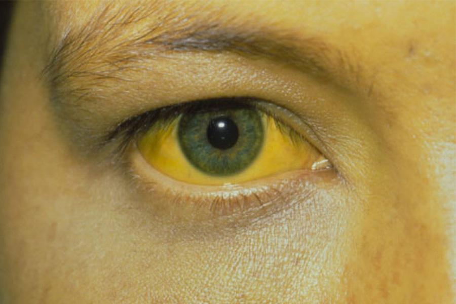 Vàng Da Là Một Trong Những Biểu Hiện Của Bệnh Gan