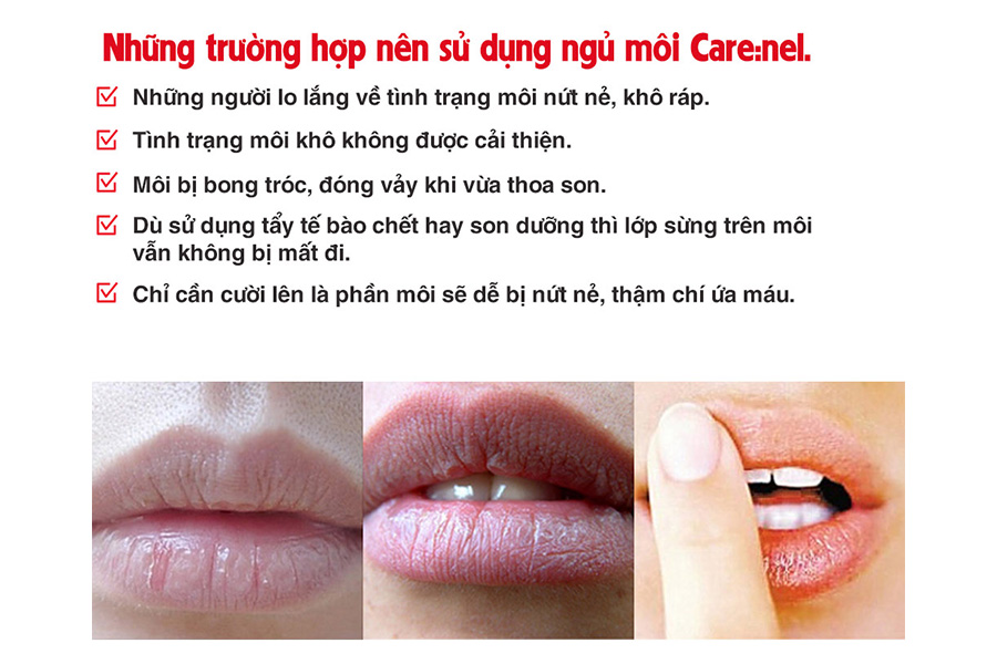 Nhung Truong Hop Nen Su Dung Ngu Moi Carenel Huong Luu